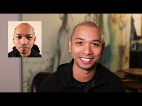 Enzo's SPEECHLESS After His Scalp Micropigmentation Treatment