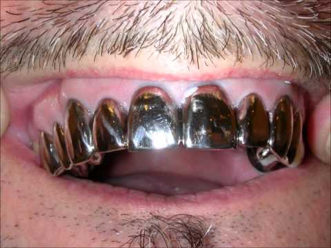 Full Metal Mouth White Gold Crowns Teeth of Steel Grillz