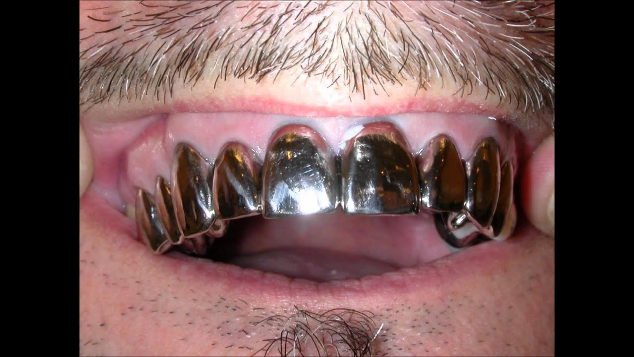 Full Metal Mouth White Gold Crowns Teeth of Steel Grillz ...