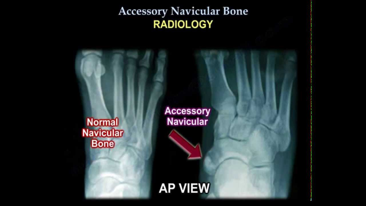 Accessory Navicular Bone - Everything You Need To Know - Dr. Nabil ...