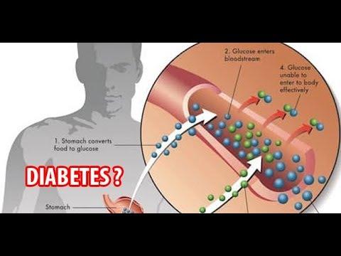 diabetes-mellitus-ada-obatnya
