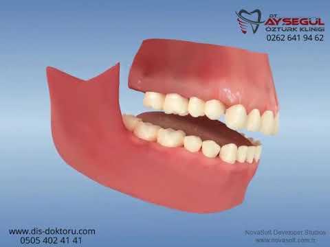 Ortodonti: Bite turbo appliances