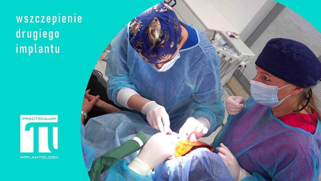 Practiculum Implantologii Sezon VIIIB Sesja 9 zabieg 4