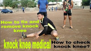 Indian army knock knee medical!  कैसे चेक होता! how to remove and fix knock knee problems!6264212131