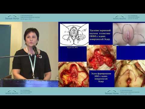 Возможности реконструктивно-пластических операций при хирургическом лечении рака вульвы
