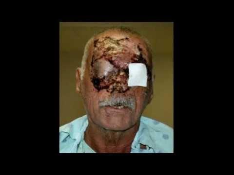 Médicos divulgam fotos da vítima do canibal de Miami