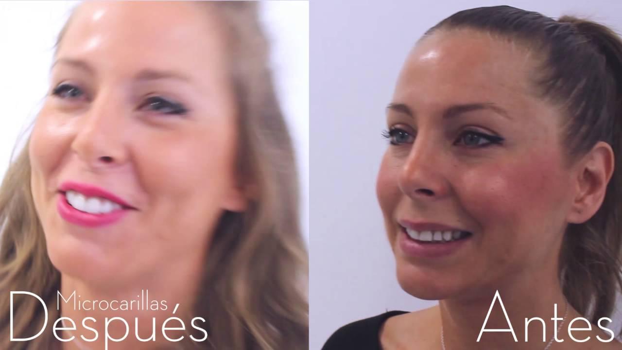 Carillas dentales despu s de dise o digital de sonrisas - Clinicas dentales de diseno ...