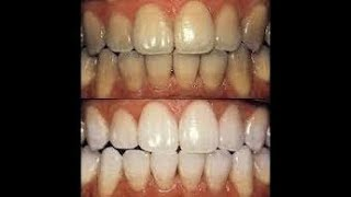 Cara Memutihkan Gigi Secara Alami Dalam Waktu 1 Minggu