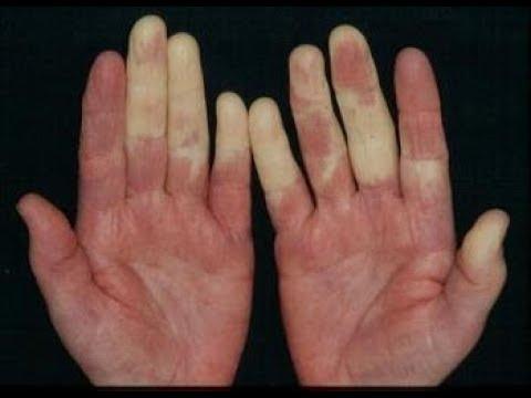 Постоянно холодные руки и  ноги? Синдром Рейно ... изменение цвета кожи...