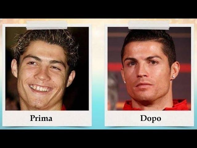 Cristiano Ronaldo prima e dopo - Solo i ricchi possono diventare belli