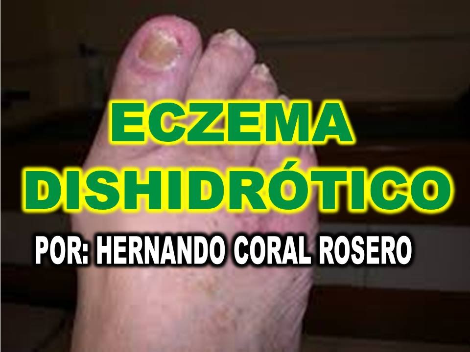 ECZEMA DISHIDRÓTICO - DERMATITIS QUE AFECTA MANOS Y PIES - YouTube
