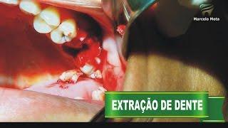 """DENTE """"ESTOURANDO"""" DURANTE EXTRAÇÃO / Tooth Extraction surgery"""