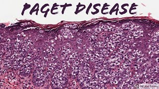 Extramammary Paget Disease: 5-Minute Pathology Pearls
