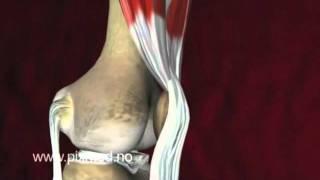 видео Артроз коленного сустава