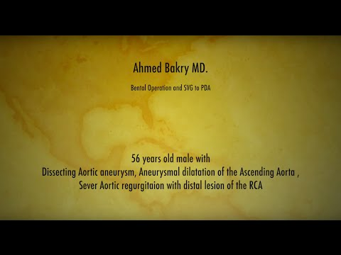 Bental Operation and SVG to PDA , Ahmed Bakry MD.
