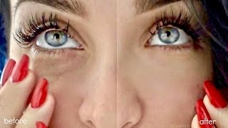 DIY | HOW TO GET RID OF DARK CIRCLES + PUFFY UNDER EYES in SECONDS (Brighten Naturally At Home)
