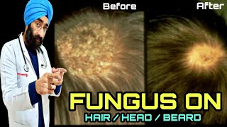 Cure FUNGAL Infection on scalp, Head, Hair, Beard (Tinea capitis) | Ringworm | Dr.Education (Eng)