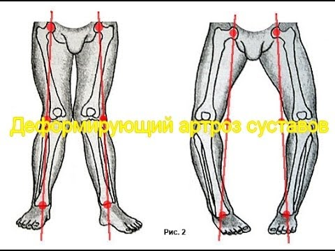 Остеоартроз тазобедренного сустава лечение диета упражнения