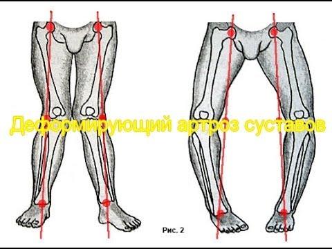 Артроз тазобедренного сустава (коксартроз) 1 степени