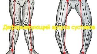 видео Артроз коленного сустава 3 степени: признаки, лечение и профилактика