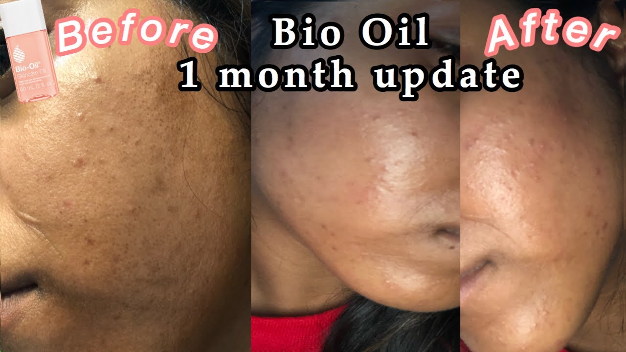 Review for face bio oil Review: 'Bio