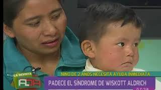 Padres de niño que padece de síndrome Wiskott Aldrich piden ayuda