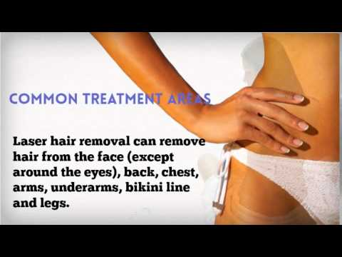 Laser Hair Removal (California Skin & Laser Center)
