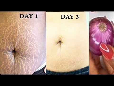 In 3 Days Get Rid Of Stretch Marks Super fast and Permanently, Have a Nourished Smooth Soft Body