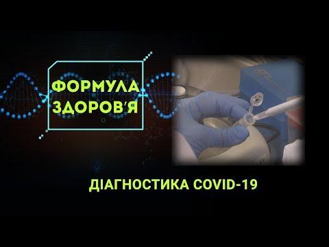 НТА - Незалежне телевізійне агентство: ДІАГНОСТИКА COVID-19: Чи ефективні експрес-тести на коронавірус?
