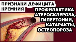 Правильное питание Витамины Кремний и его польза для организма человека