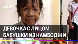 Девочка с лицом бабушки из Камбоджи: эффект Бенджамина Баттона в реальности