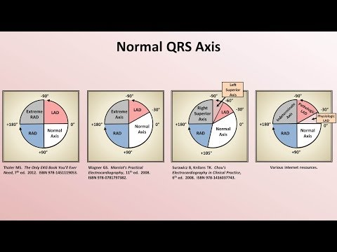 Intro to EKG Interpretation - Rate and Axis