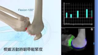 精準對付退化性關節炎,MAKOplasty® 機器人手臂關節置換 (中文字幕) | MAKOplasty® TW