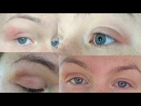 ♡  How I Cured My Eczema/Dermatitis Naturally - EYELIDS & BODY! ♡