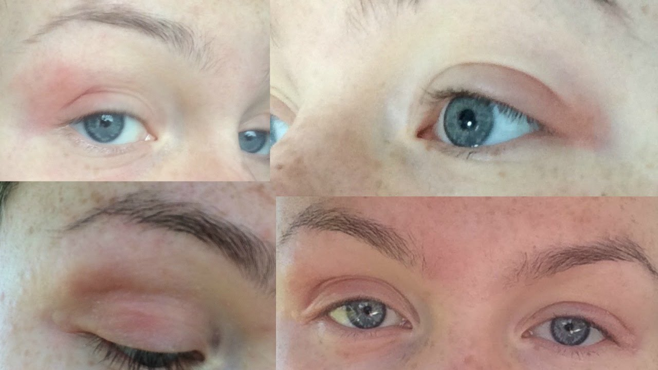 How I Cured My Eczemadermatitis Naturally Eyelids Body