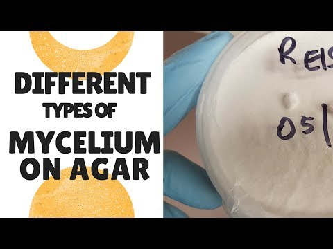 A Look At Some Different Types of Mycelium on Agar