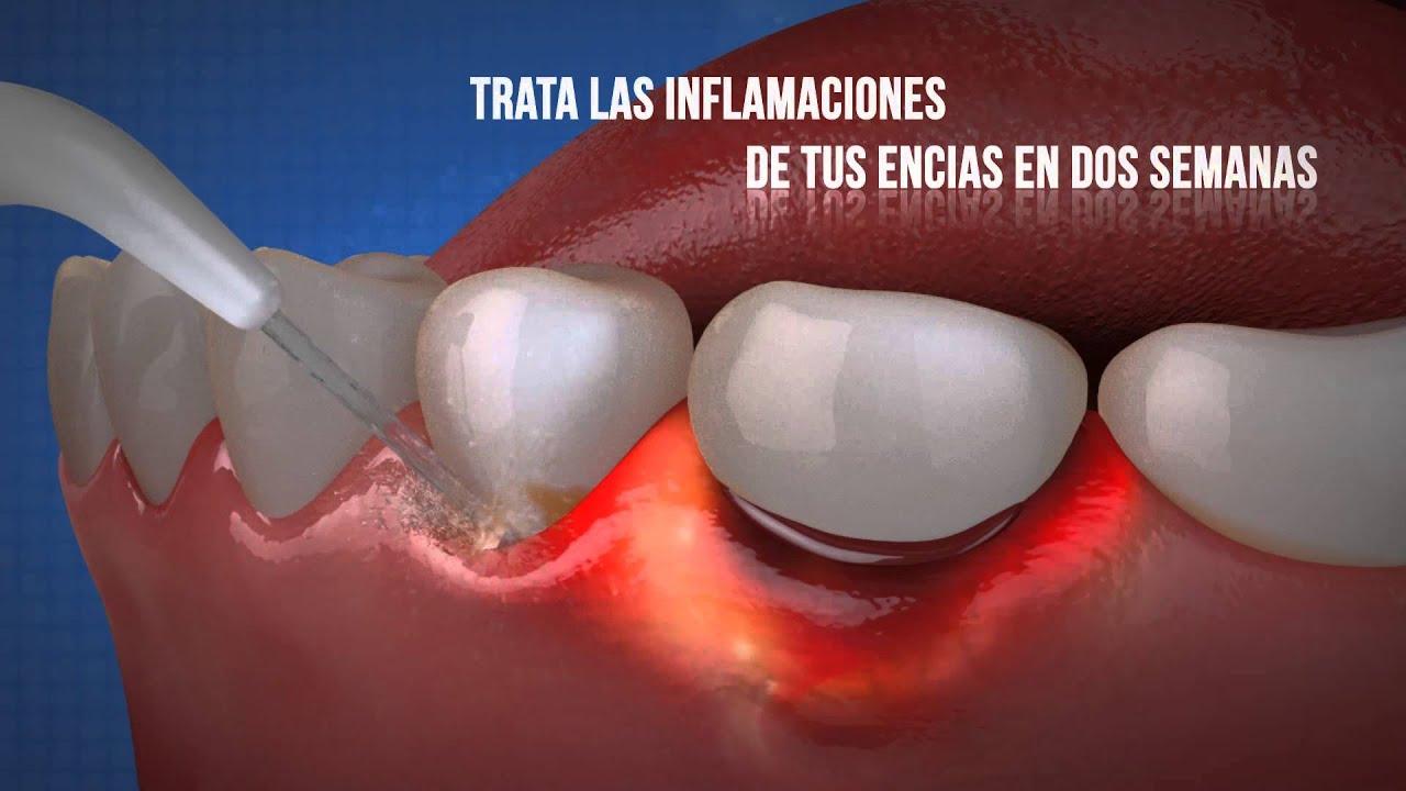 Irrigador Dental Silonite Youtube