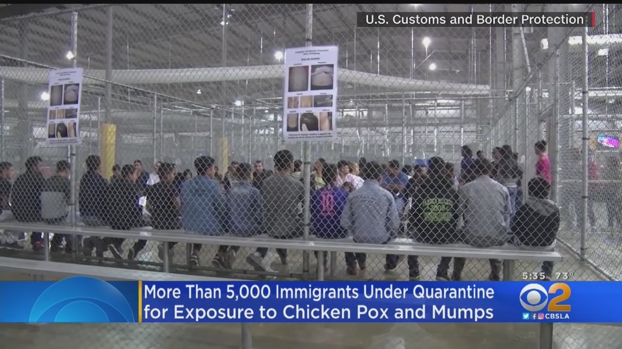 5000+ Immigrants Quarantined For Diseases