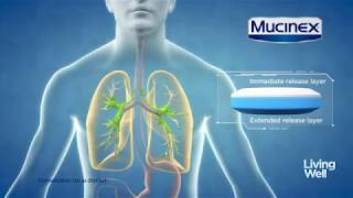 Treating Excess Mucus With Mucinex®| Living Well