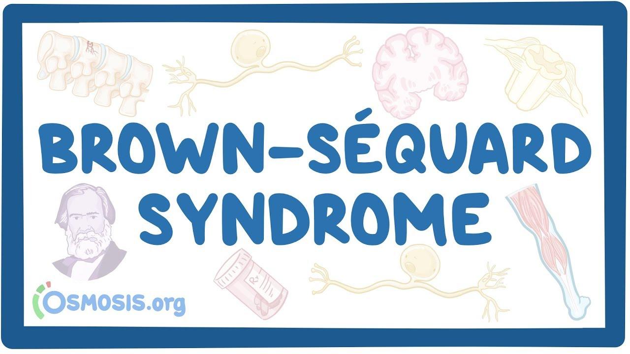 Brown-Séquard syndrome – causes, symptoms, diagnosis, treatment, pathology
