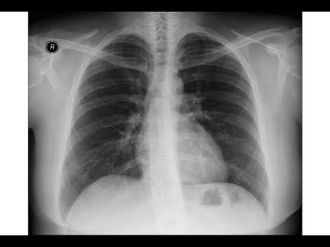 Chest X Ray Anatomy Of Pulmonary Arteries Youtube