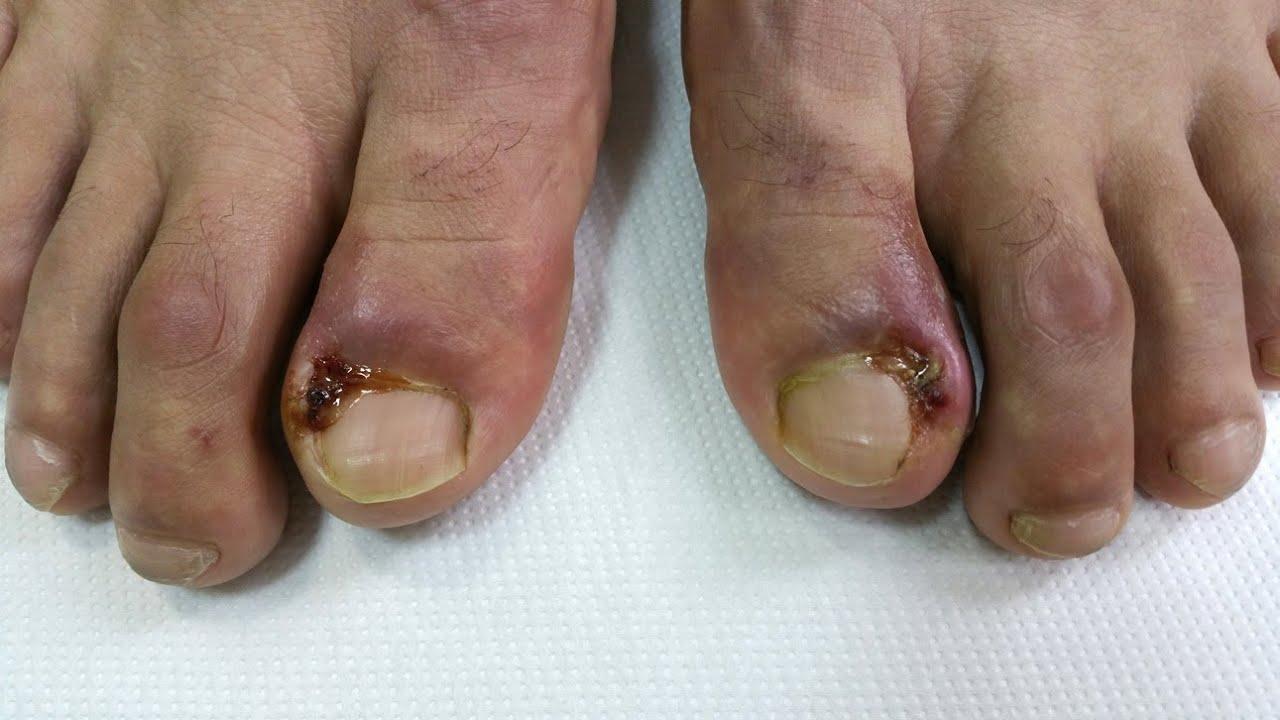 Infectie deget picior pedichiura