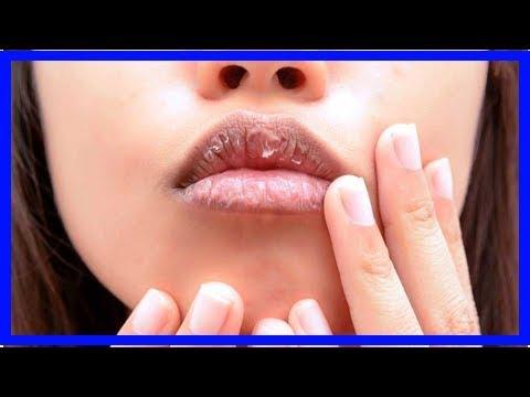 Trockene Lippen Was Tun
