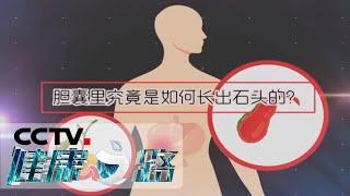 《健康之路》 20200527 沉默的胆结石| CCTV科教
