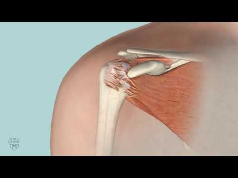 Mayo Clinic Minute: When is rotator cuff surgery right for you?