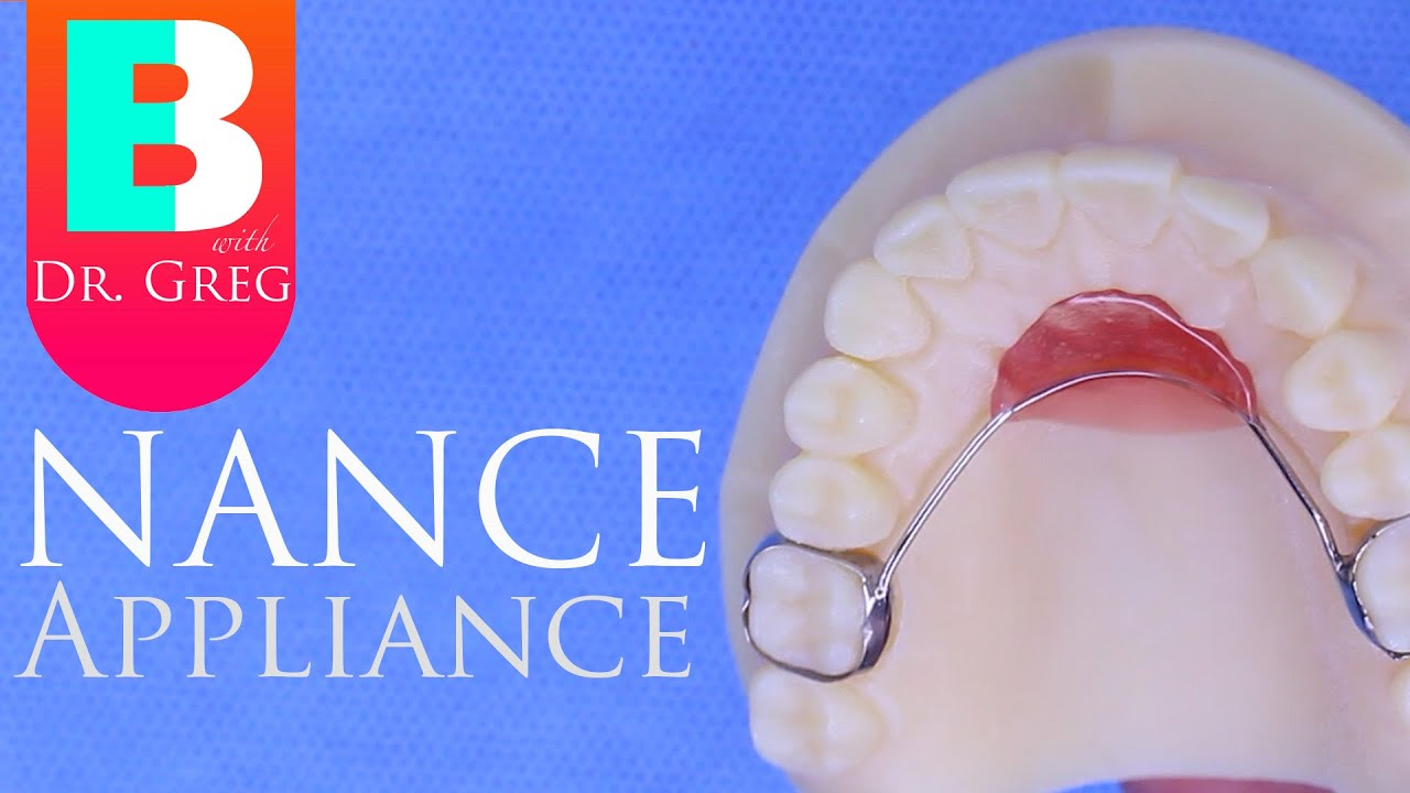 Nance Appliance during Braces