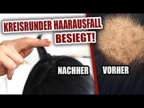 gerstengras haarausfall