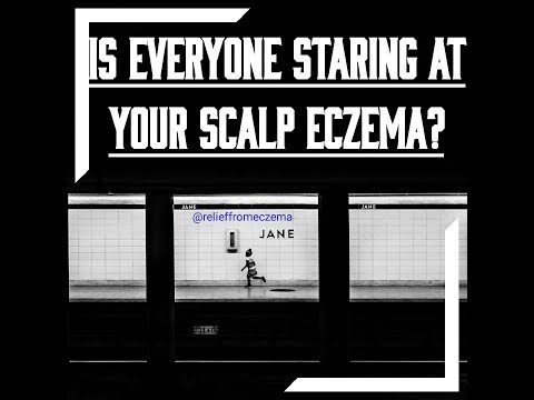 How to Get Rid Of Scalp Eczema-scalp eczema treatment
