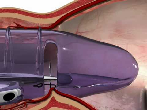 Download THD Surgery Video