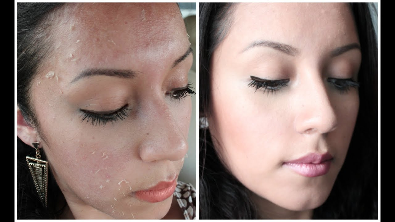 peeling antes y despues